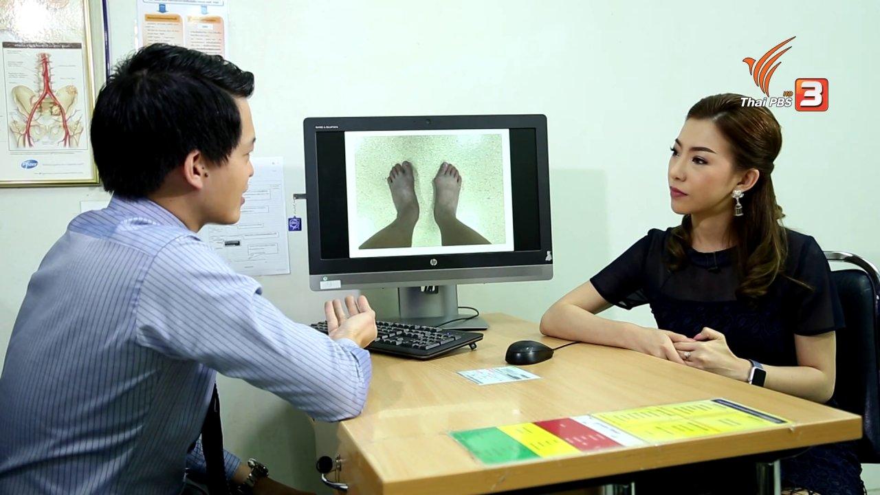 คนสู้โรค - รู้สู้โรค : นิ้วหัวแม่เท้าคดเอียง