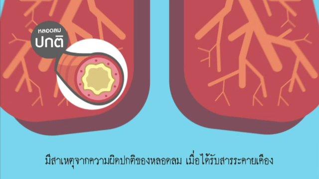 [Infographic] รู้จักสาเหตุของการเกิดโรคหอบหืด