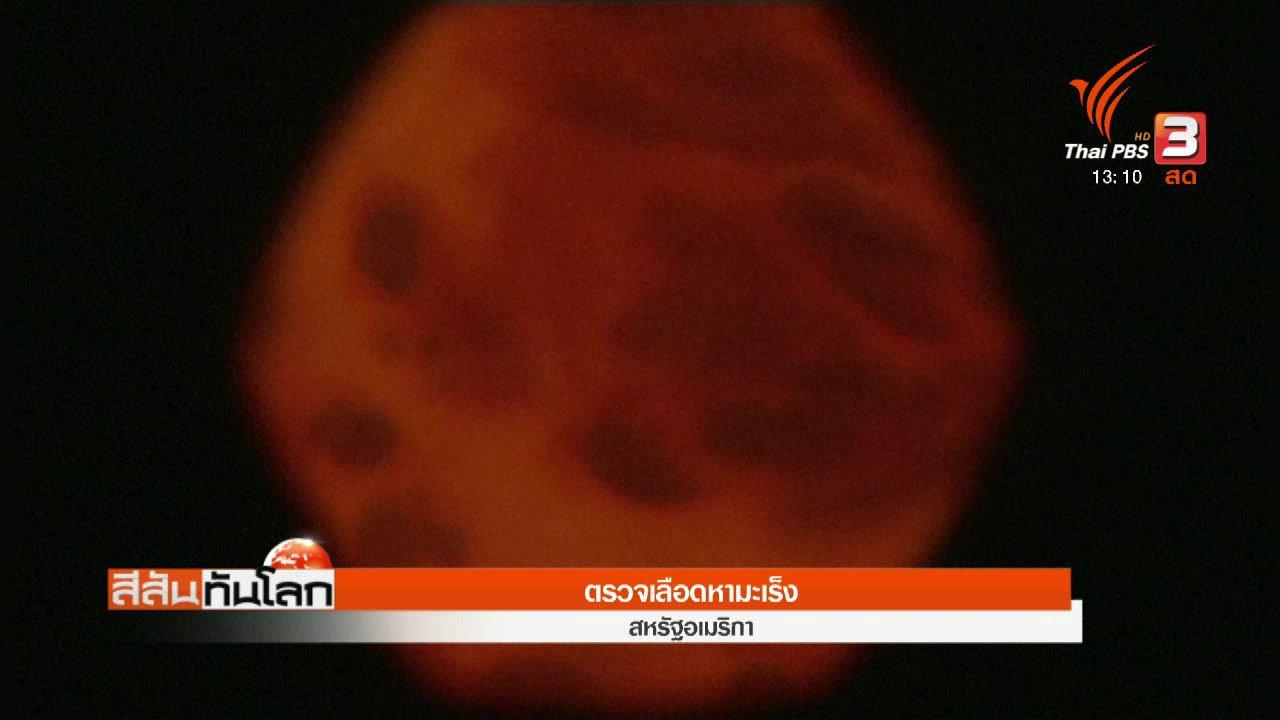 สีสันทันโลก - ตรวจเลือดหามะเร็ง