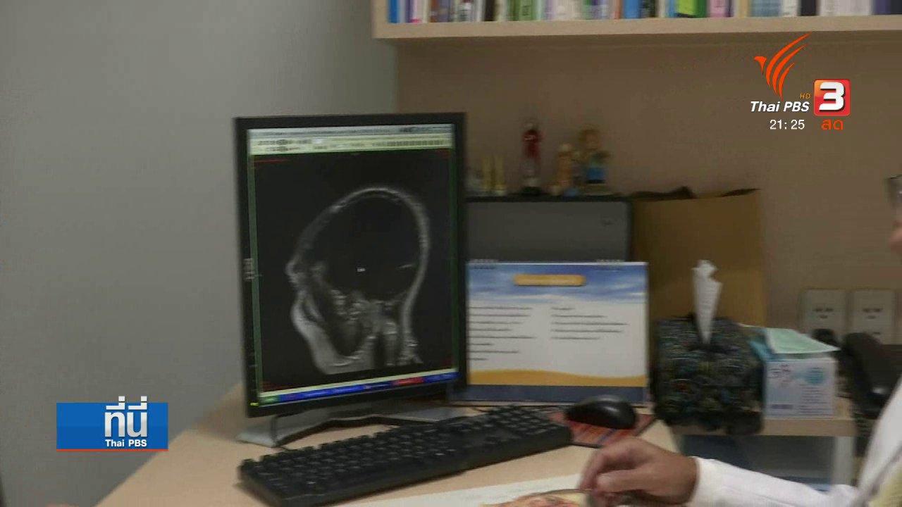 """ที่นี่ Thai PBS - บีบจมูก - เม้มปาก ขณะจาม เสี่ยง """"ภาวะลมเข้าสมอง"""""""