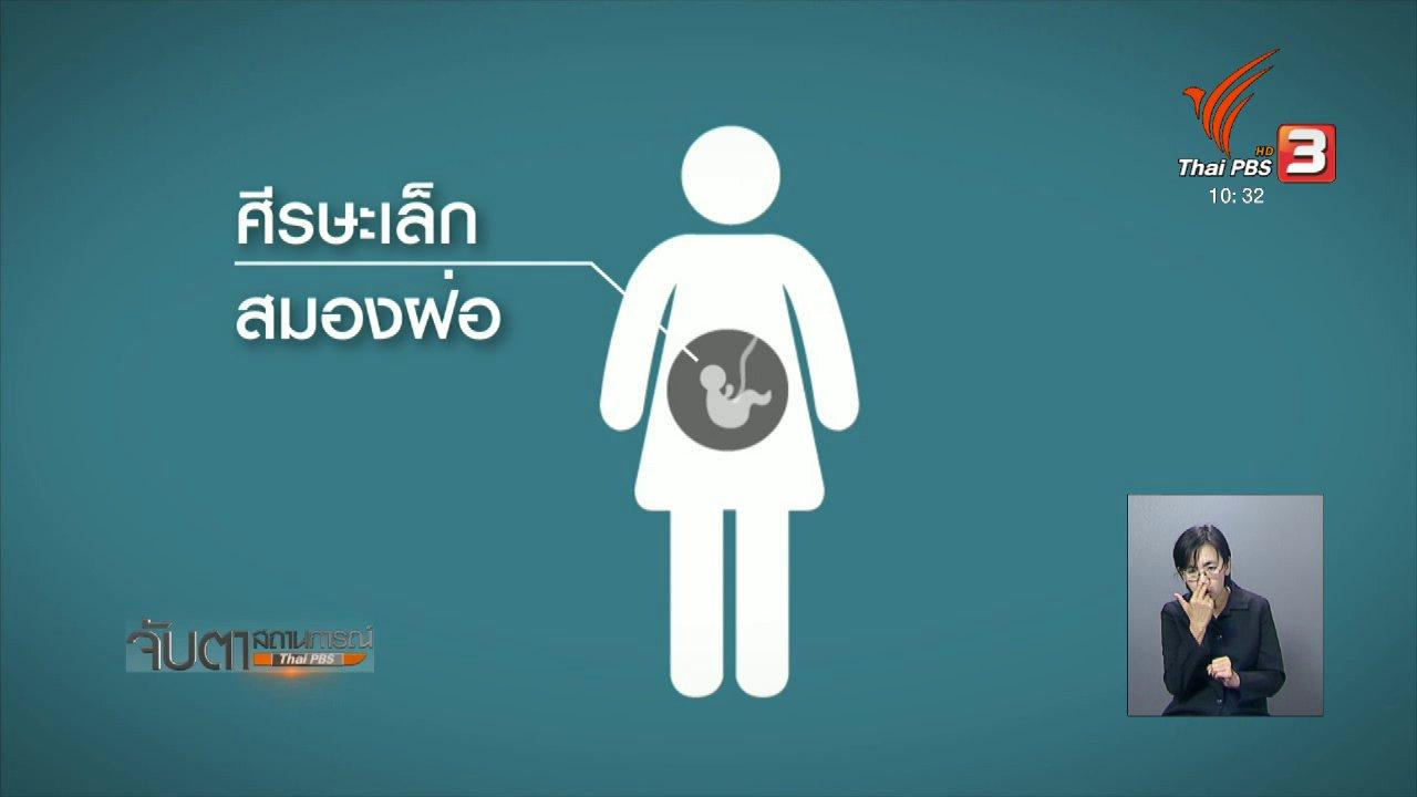 จับตาสถานการณ์ - ยังไม่พบความผิดปกติทารกในครรภ์ของผู้ติดเชื้อซิกา