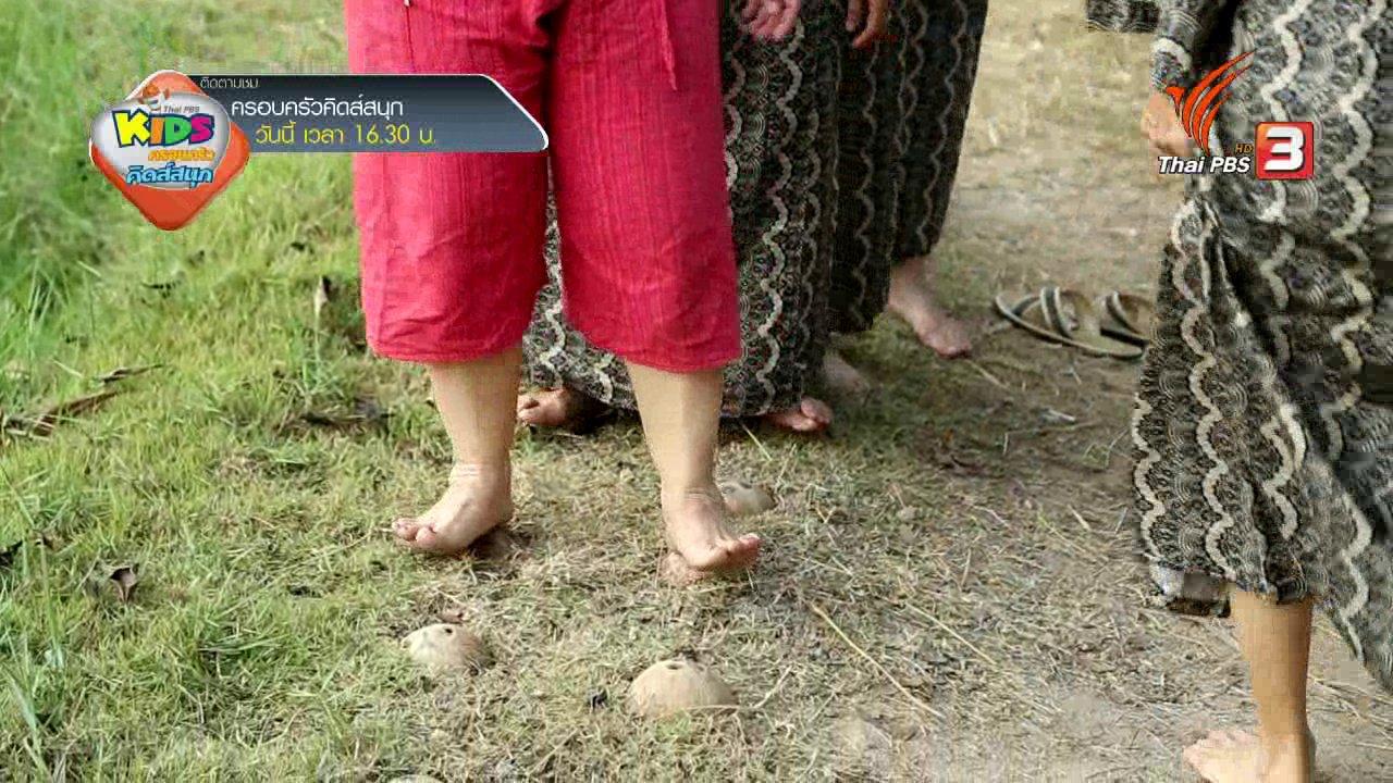 คนสู้โรค - รู้สู้โรค : นวดเท้าด้วยกะลา