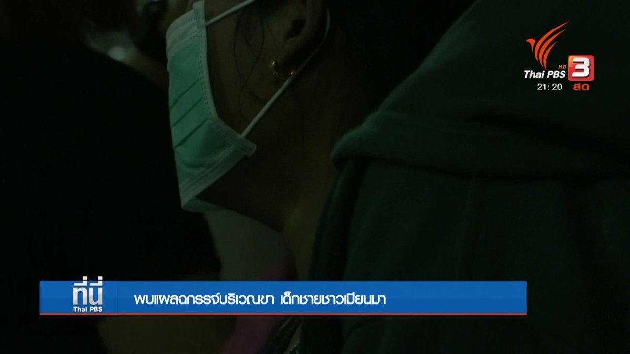 ที่นี่ Thai PBS - พบแผลฉกรรจ์บริเวรขา เด็กชายชาวเมียนมา