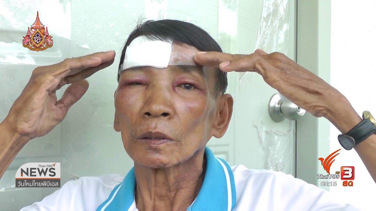 วันใหม่  ไทยพีบีเอส - บริษัทเก้าอี้นวดไฟฟ้าจ่ายเงินเยียวยาผู้บาดเจ็บ 2 หมื่นบาท