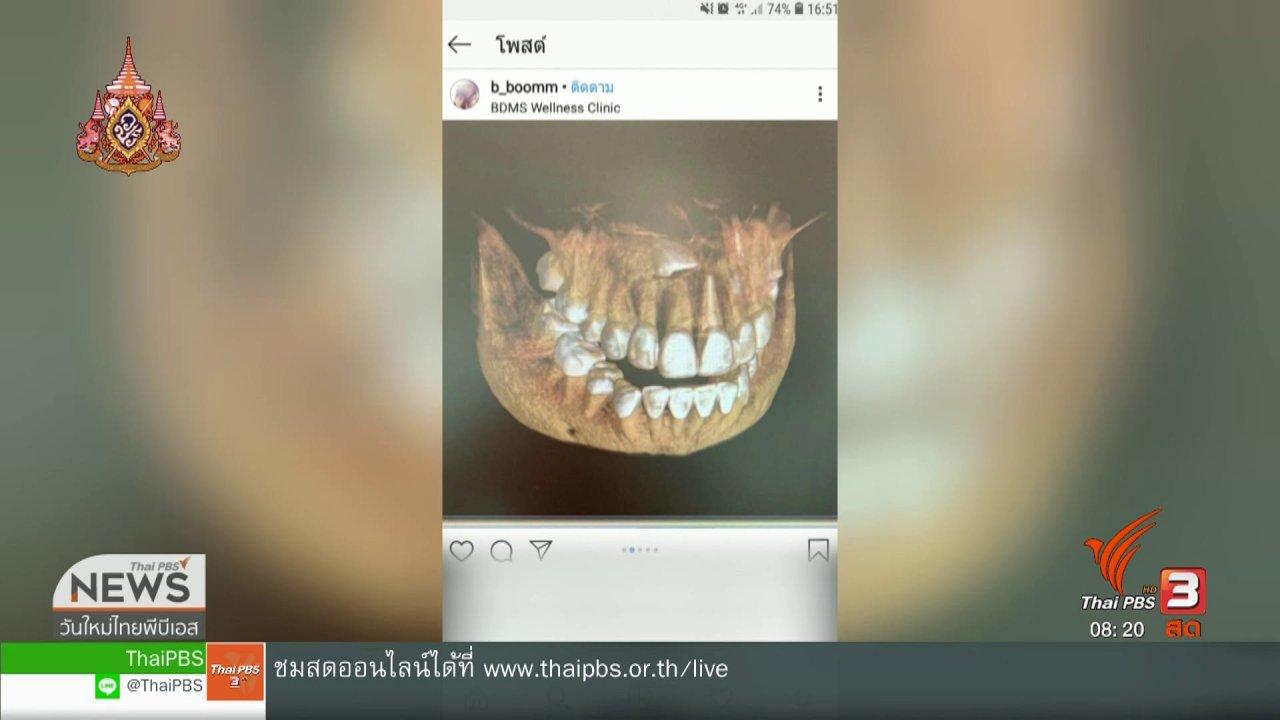วันใหม่วาไรตี้ - จับตาข่าวเด่น : ฟันคุด หากไม่รักษา อาจเสี่ยงอันตราย