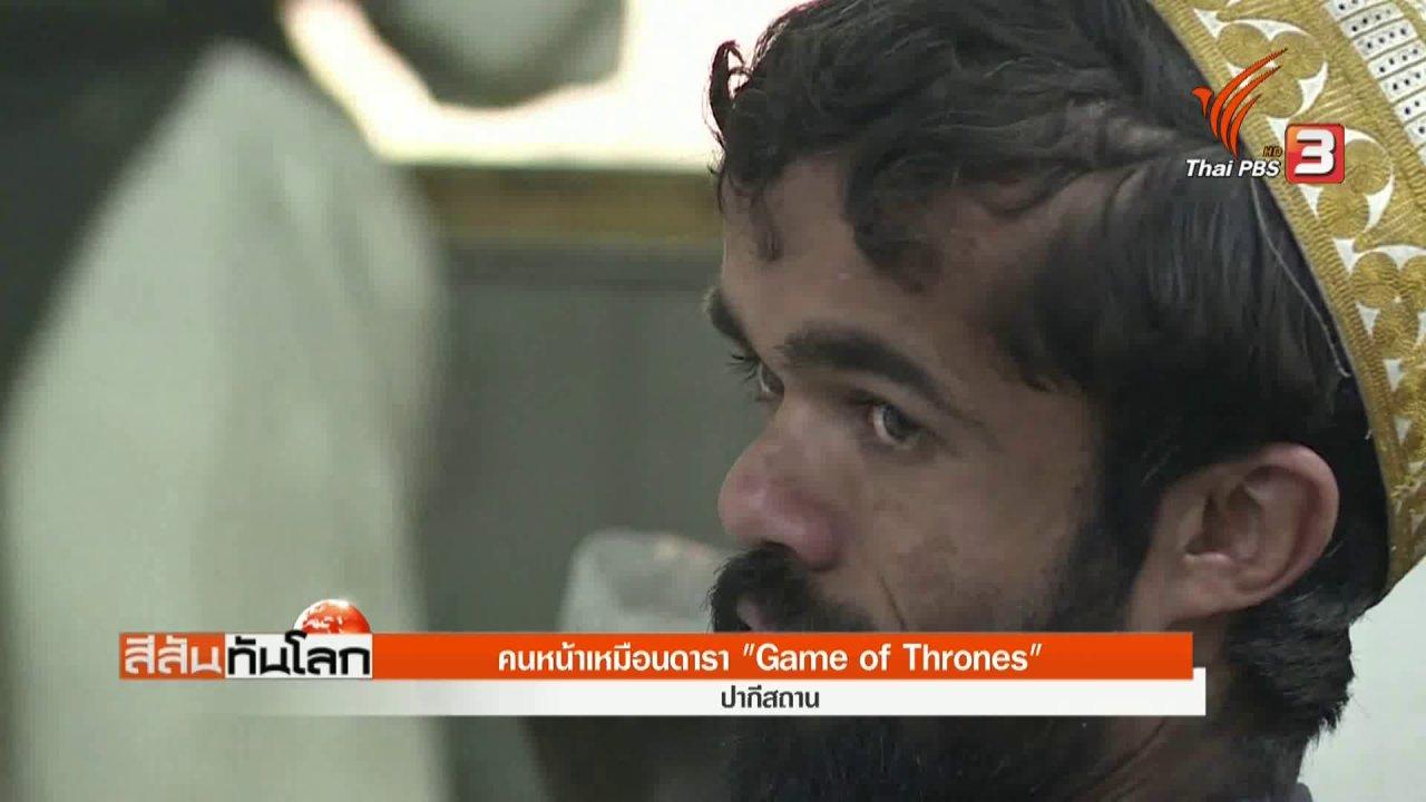 """สีสันทันโลก - คนหน้าเหมือนดารา """"Game of Thrones"""""""