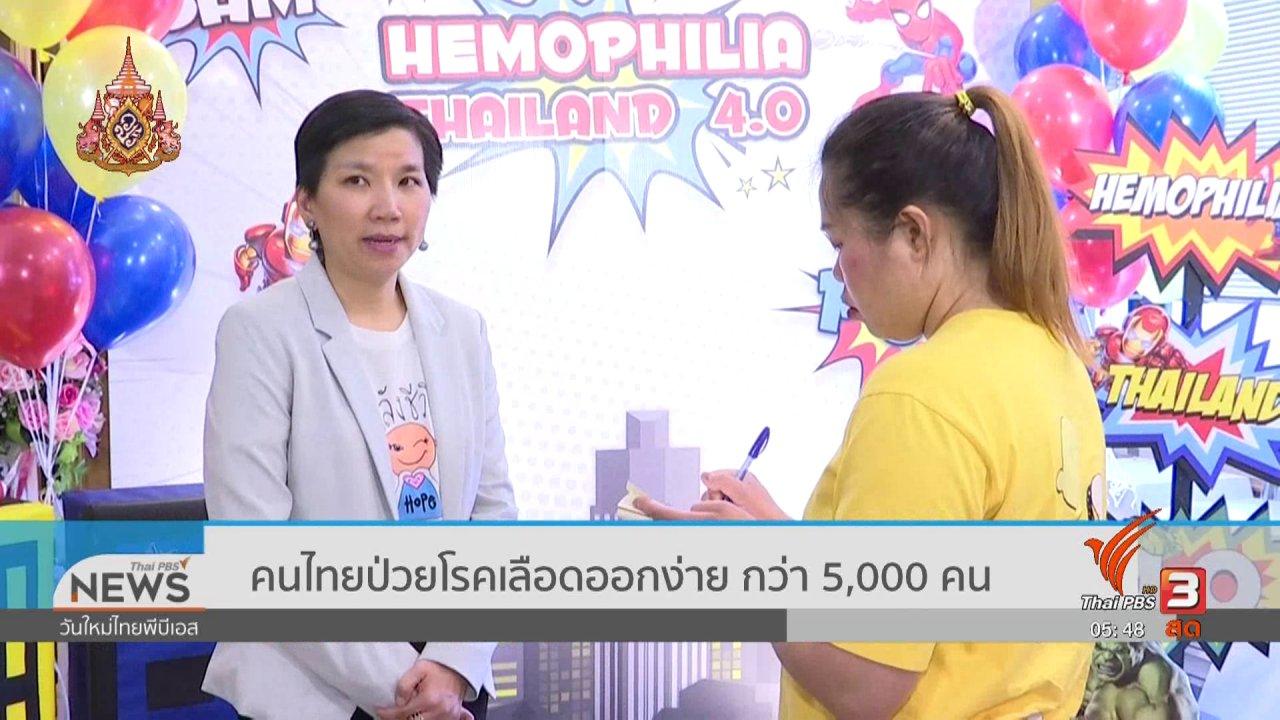 วันใหม่  ไทยพีบีเอส - คนไทยป่วยโรคเลือดออกง่าย กว่า 5,000 คน