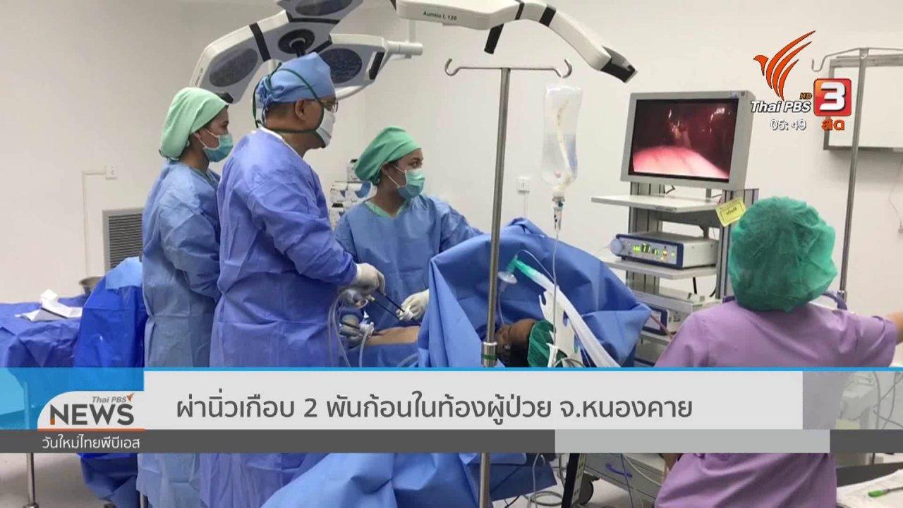 วันใหม่  ไทยพีบีเอส - ผ่านิ่วเกือบ 2 พันก้อนในท้องผู้ป่วย จ.หนองคาย