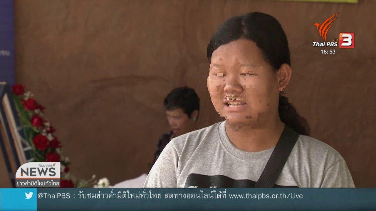 ข่าวค่ำ มิติใหม่ทั่วไทย - 1 ผู้บริจาคหัวใจ-อวัยวะ ต่อชีวิตผู้อื่นอีก 4 ชีวิต