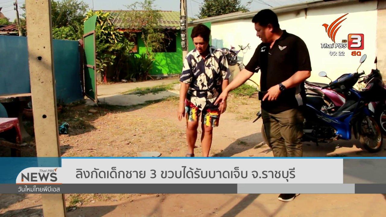 วันใหม่  ไทยพีบีเอส - ลิงกัดเด็กชาย 3 ขวบได้รับบาดเจ็บ จ.ราชบุรี