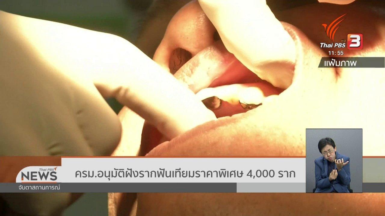 จับตาสถานการณ์ - ครม.อนุมัติฝังรากฟันเทียมราคาพิเศษ 4,000 ราก