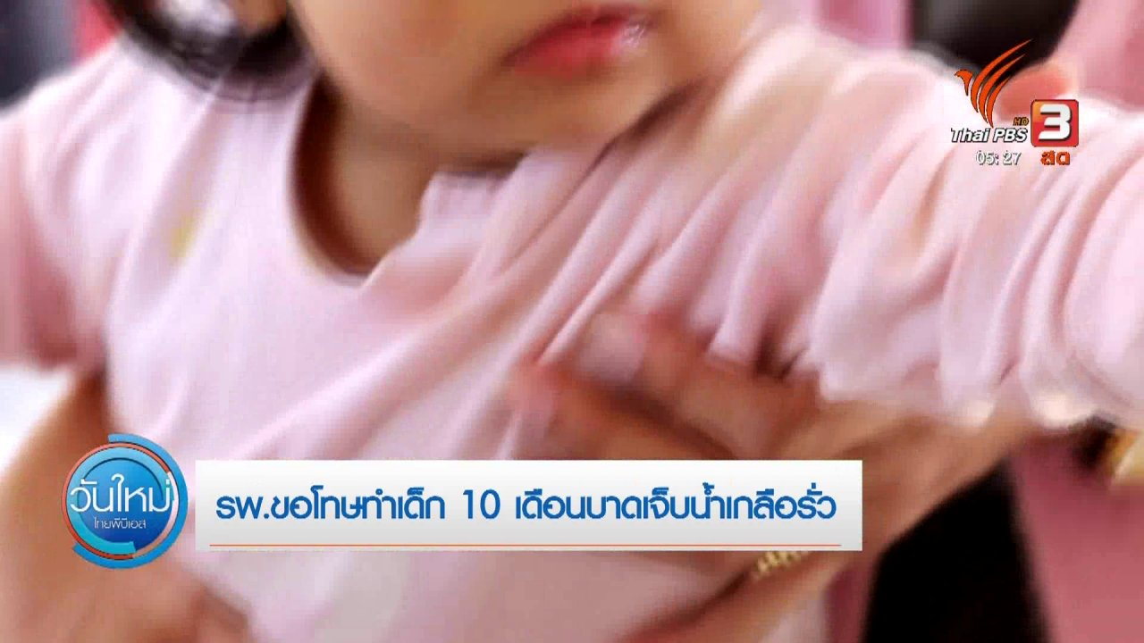 วันใหม่  ไทยพีบีเอส - รพ.ขอโทษทำเด็ก 10 เดือนบาดเจ็บน้ำเกลือรั่ว