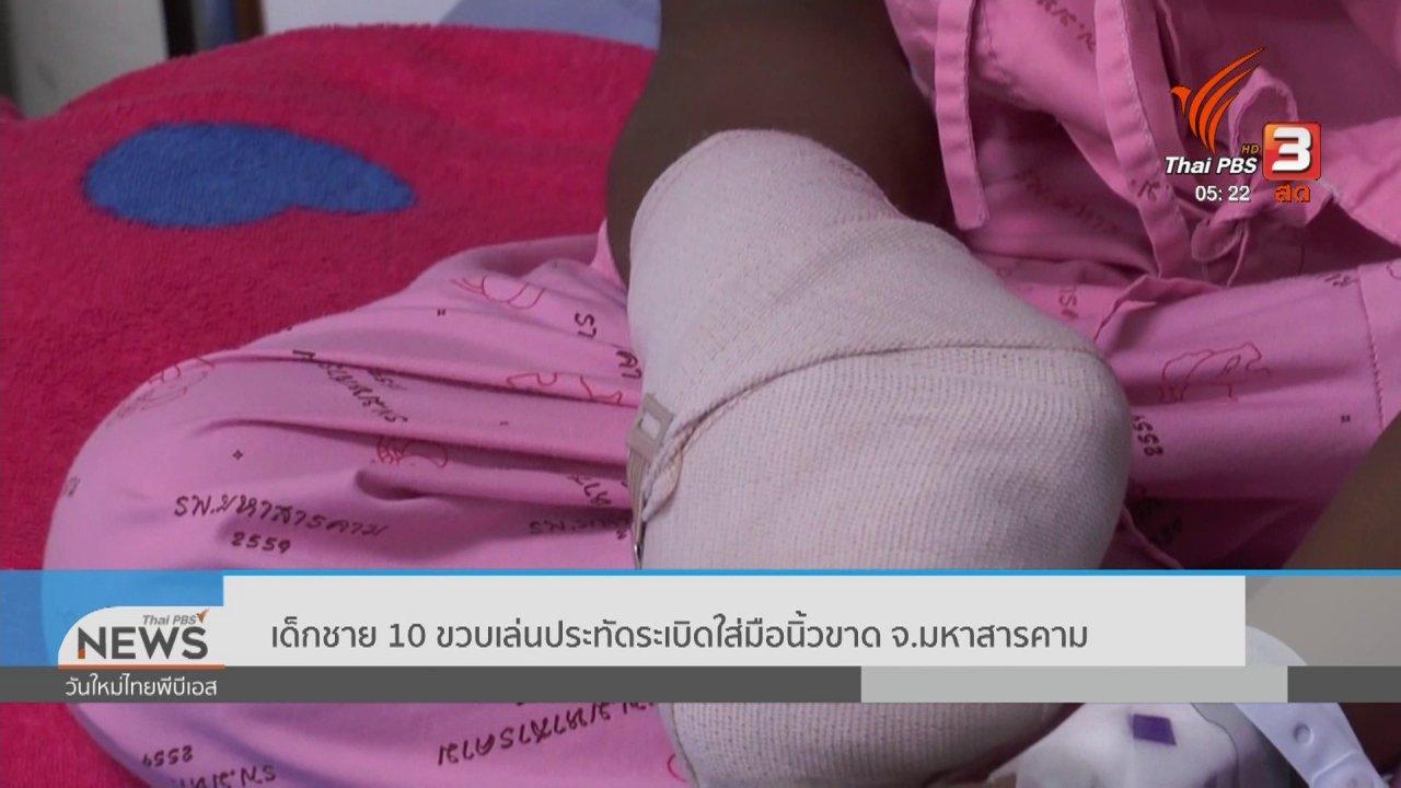 วันใหม่  ไทยพีบีเอส - เด็กชาย 10 ขวบเล่นประทัดระเบิดใส่มือนิ้วขาด จ.มหาสารคาม