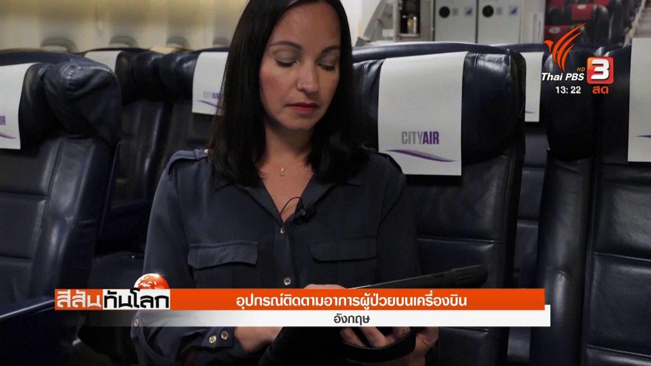 สีสันทันโลก - อุปกรณ์ติดตามอาการผู้ป่วยบนเครื่องบิน