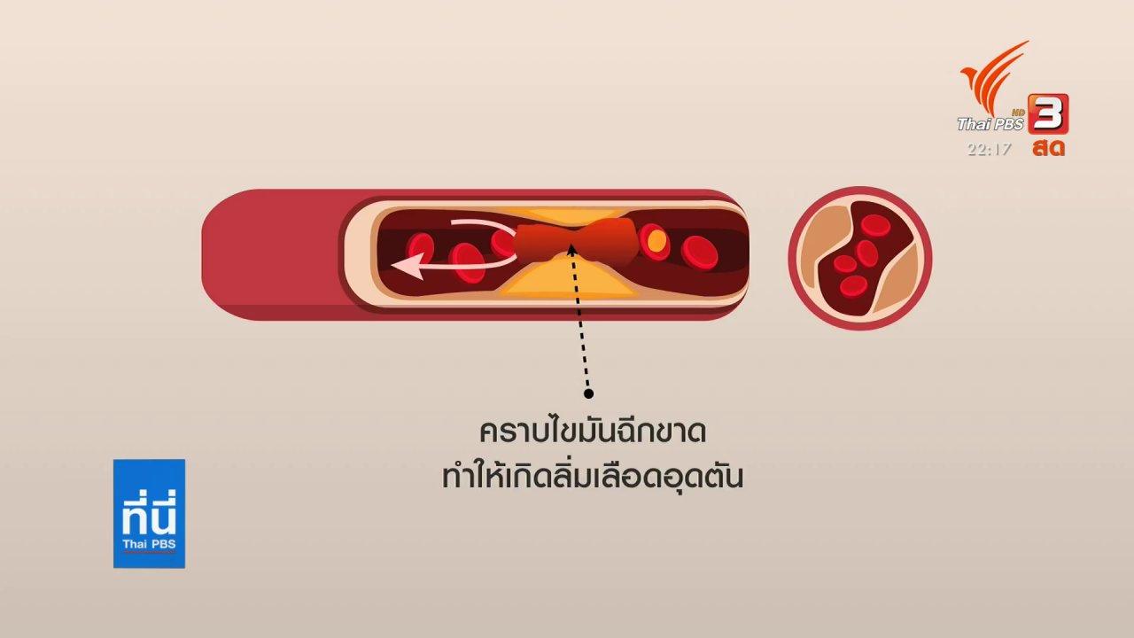 ที่นี่ Thai PBS - อิหร่านประกาศตอบโต้ เหตุสังหารนักวิทยาศาสตร์นิวเคลียร์
